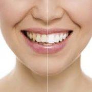 teeth whitenning abroad